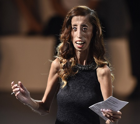 Meet the World's 'Ugliest Woman' and How She Copes With ...