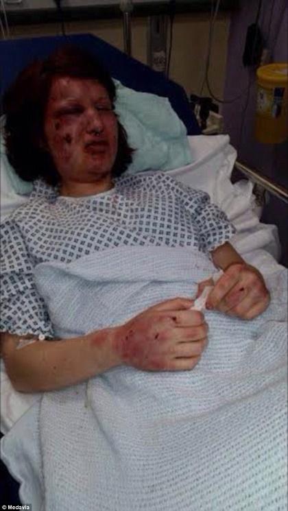 Photos: Man Bites His Ex-girlfriend's Face 21 Times 'so No