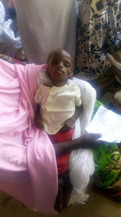 See Photos of a Starving and Malnourished 2-year-old Child From Gombe State 2