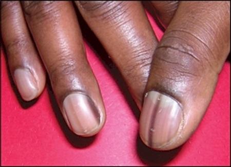 what causes dark stripes in fingernails