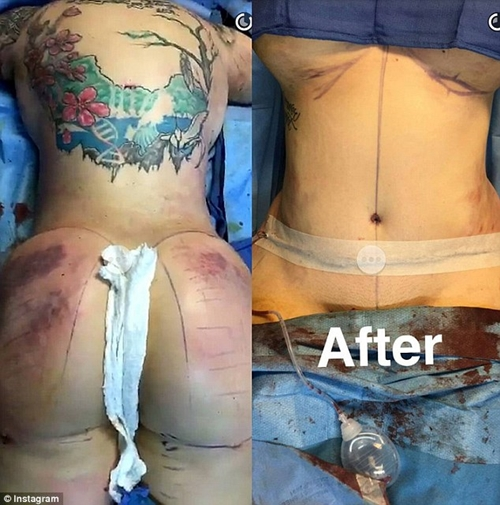 Butt surgery before and after