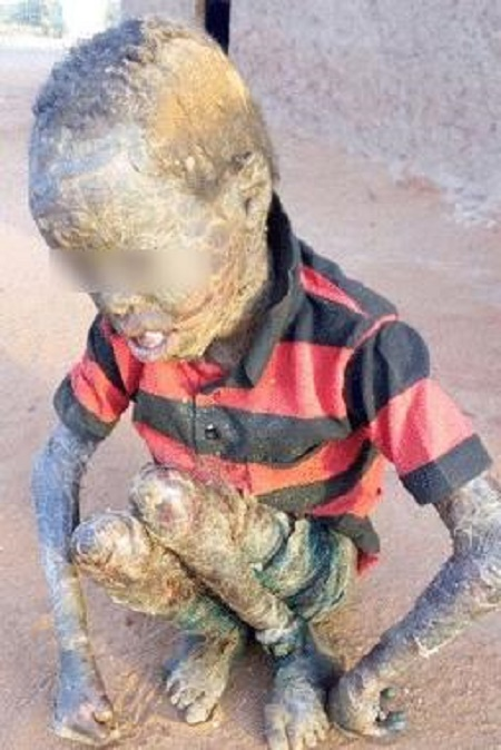 Omg! See How These Children Look After Contracting Rare ...