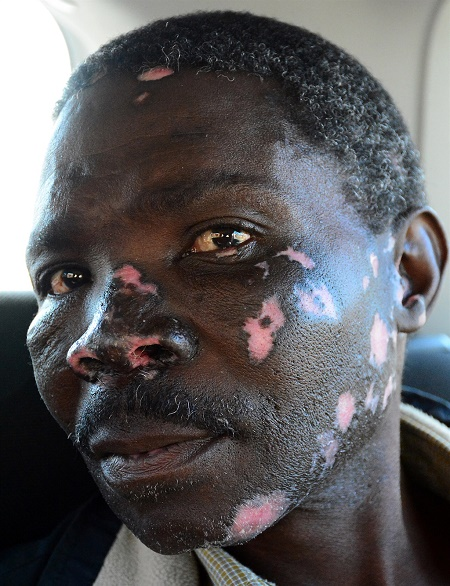 See What Happened to Man Cast With Love Spell After He Tried to Burn It (Photo)