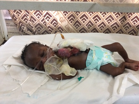 How Sad! Baby Born With Heart Outside Her Chest Dies Ahead of Surgery...See New Details