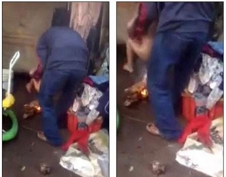 Stepdad burns little boys genitals by dangling him over