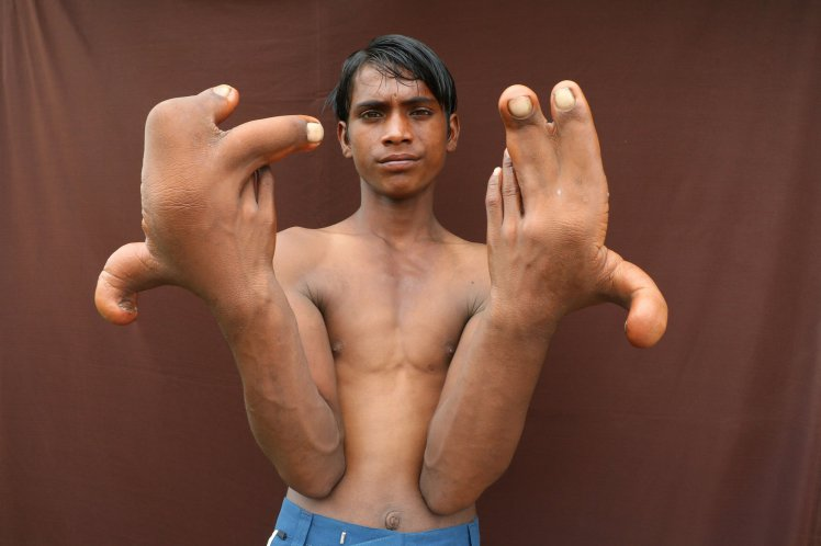 Mysterious: See the Boy Who Was Dubbed 'The Devil' After Being Born With Giant Hands (Photos)