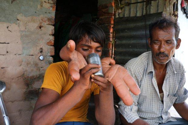 Inde : un garçon de 12 ans né avec des mains géantes surnommé « diable » par les villageois (photos)