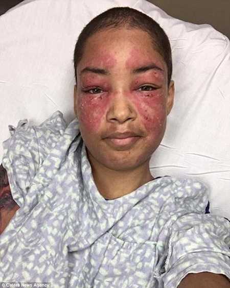 Omg! Meet 22-year-old Girl Whose Skin Burns Anytime She Steps Outside in the Sunlight (Photos)