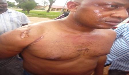 Billionaire Kidnapper: How I Got a Huge Gunshot Scar On My ...