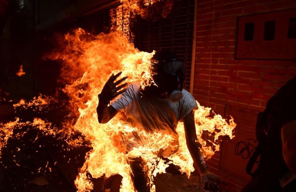 Man Sets Woman On Fire : Commotion as woman sets husband ablaze just after wedding