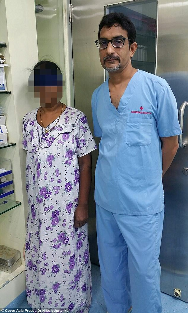 Woman Who Aborted Her Own Baby Finds It Inside Her Stomach 15 Years After (Photo)