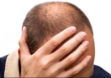 Man Commits Suicide Because Of Hair Loss