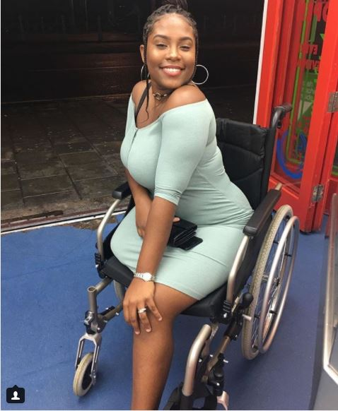 So Touching: Pictures Of A Beautiful Female Amputee Will