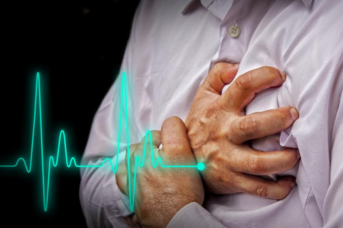 Check Out The Common Things That Trigger Heart Attack