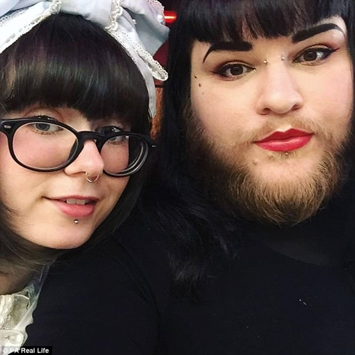 Young Lady With Incredible Full Beard Like A Man Shares Her Story (Photos)
