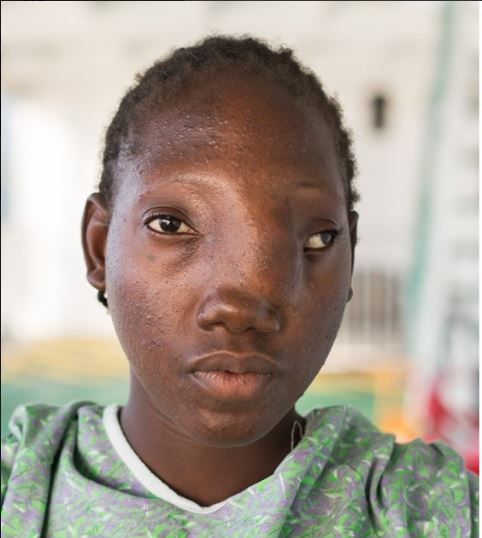 Young Girl With Deformed Face Gets New Life After ...