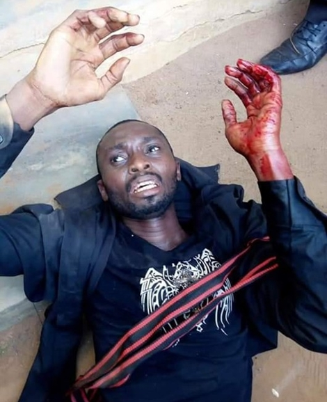Photos Of The Mentally-deranged Man Who Butchered Two Pupils After He Was Caught, Shot By Police