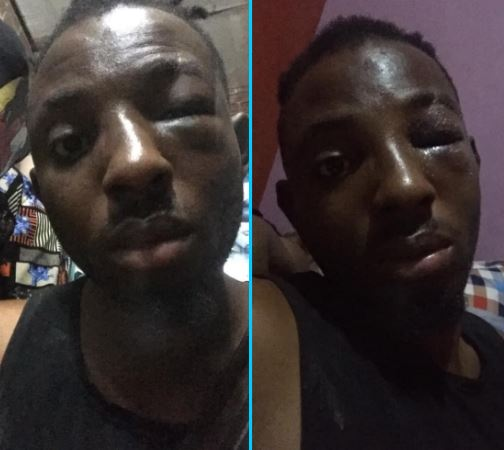 Man beaten by thugs his girlfriend hired
