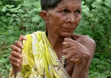 Woman Born With 12 Fingers, 20 Toes Tagged 'Witch' By Neighbours 1