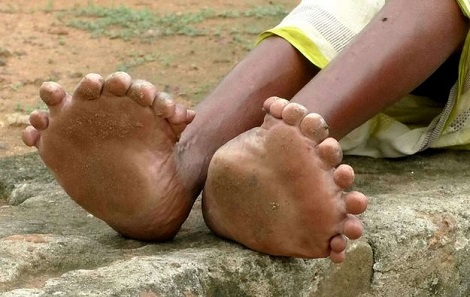 Woman Born With 12 Fingers, 20 Toes Tagged 'Witch' By Neighbours 2