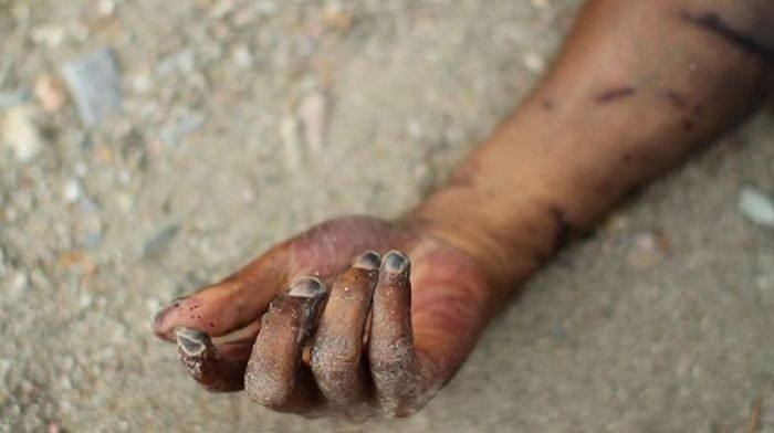 herdsmen cut woman's hand