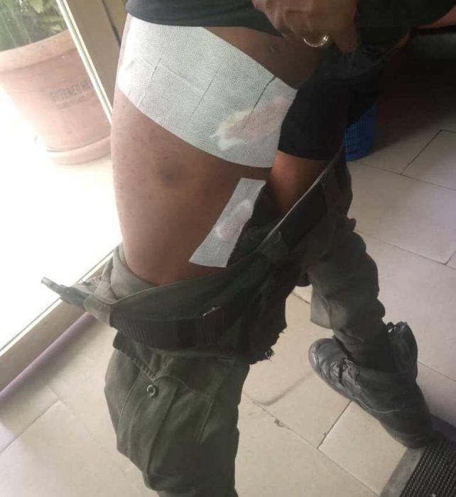 policeman shot