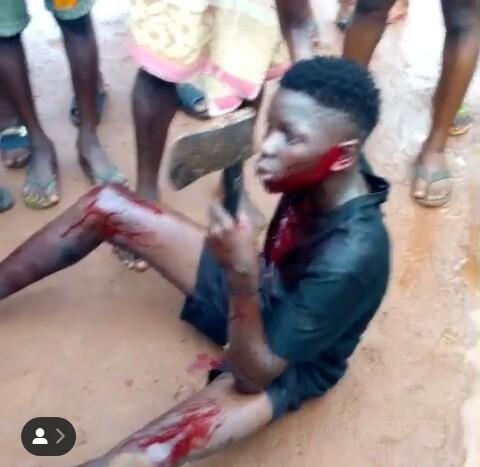 The teenage boy beaten to a pulp