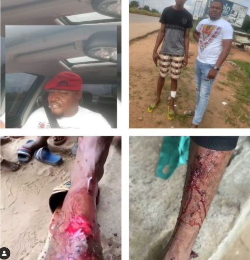 Boy attacked by SARS