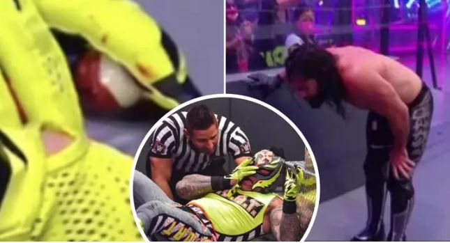 Rey Mysterio's eyes pops out during fight