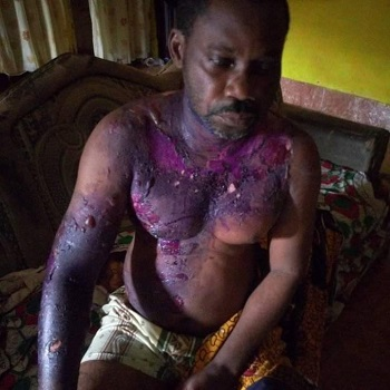 Oyinkro Miebode was bathed with hot water by his wife