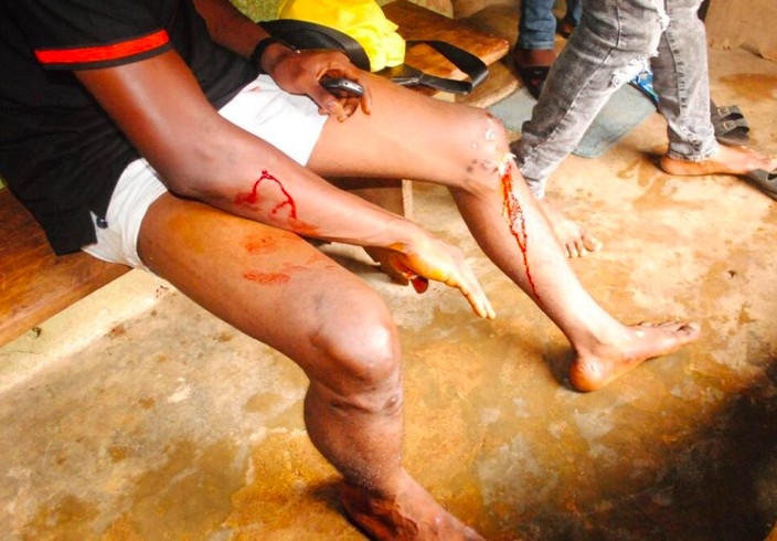 Supporters of Rotimi Akeredolu attacked