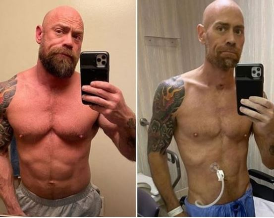 Male Nurse Shares His Drastic Transformation To Show How Coronavirus Can Ravage One's Body