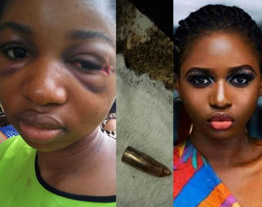 Favour Grey survived with bullet in her head for 5 days