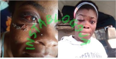 Amaka left seriously injured for visiting her lover in Lagos