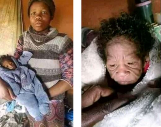 The mother and her baby with progeria