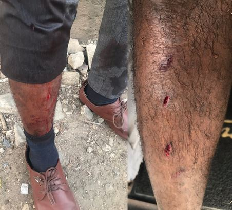 Man Raises Alarm About 'One-chance' Robbery In Lagos As He Falls Victim