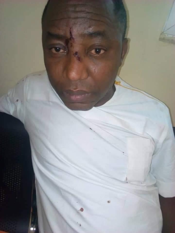 Sowore's battered face after his arrest on Friday