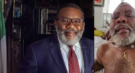 Buhari's appointee, Willie Amadi