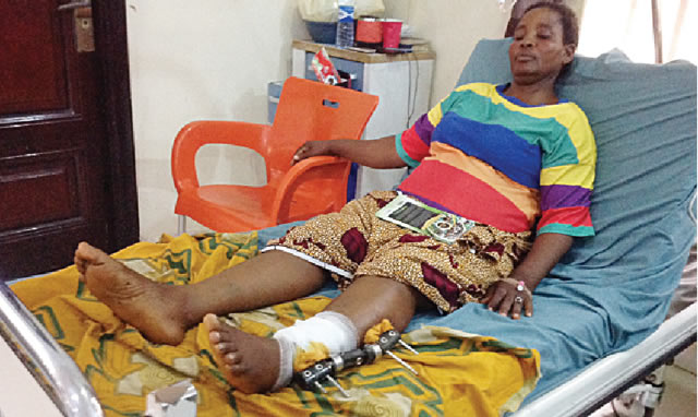 Bayelsa Woman Who Was Shot By Policemen While Buying Things In The Market Tells Her Story