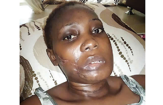 Gunshot By Policeman Fiancé Slashed My Sister's Tongue, All Teeth To Be Removed – Sibling Reveals